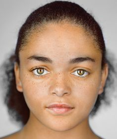Imani Cornelius, 13, Shakopee, Minnesota. Self-ID: black and white | Census box checked: black | Imani needs a bone marrow transplant but a shortage of African American and multiracial donors has kept her waiting for two years, because matches rely on shared ancestry.