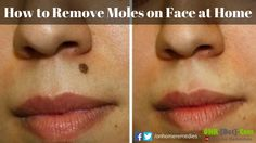 How to Remove Moles on Face at Home (Fast & Naturally)