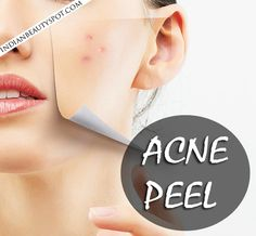 Acne Peel - Get rid of scars naturally