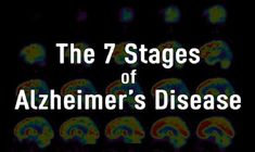Every person with Alzheimer's disease experiences the disease differently, but patients tend to experience a similar trajectory from the beginning of the illness to its merciful end. The precise number of stages is somewhat arbitrary. Some experts use a simple three-phase model (early, moderate and end), while others have found a granular breakdown to be …