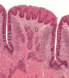 serous membrane microscope - Google-søk