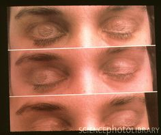 The eyes-Though covered by lids, the movement of the eyes denotes the different stages of sleep.On first falling into semi-consciousness, the eyes roll. But as we move into deeper sleep, rapid eye movement (REM) occurs when the eyes twitch and dart about.   This REM occurs within about 90 minutes of falling asleep and recurs about every 90 minutes throughout the night. It denotes a time when most dreaming is done.