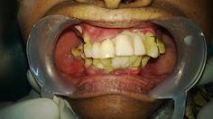 GenXT Dental Implants in Chennai: New GenXT Dental Implants In Chennai