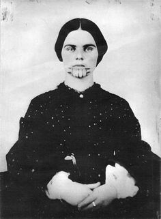Olive Oatman (1837-1903) was a woman from Illinois who was famously abducted by a Native American tribe (likely the Yavapai people), then sold to another (the Mohave people).[1] She ultimately regained her freedom five years later. The story resonated in the media, partly owing to the prominent blue tattooing of Oatman's face by her captors. In subsequent years, the tale of Olive Oatman came to be retold with dramatic license in novels, plays, and poetry.