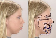 A Patient's Guide to Orthognathic Surgery. I'll never look as attractive as i could have been now when i was a really pretty little girl before sucking my thumb at night screwed up my face, so i will have no problem with getting my nose and jaw corrected. Just want to look as close as i can to how i should have looked.