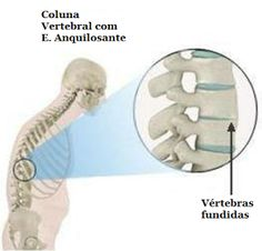 Com diagnóstico tardio, quase metade dos pacientes com espondilite anquilosante têm deformidade completa da coluna