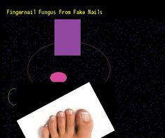 Fingernail fungus from fake nails - Nail Fungus Remedy. You have nothing to lose! Visit Site Now