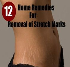 Stretch Mark Removal Home Remedy Check more at http://www.healthyandsmooth.com/skin-care/stretch-mark/stretch-mark-removal-home-remedy/