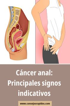 infección quirúrgica que involucra ganglios linfáticos y próstata