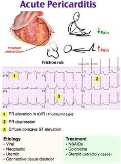 Rosh Review acute pericarditis