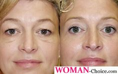 Droopy eyelid and eye lift surgery - photos, cost and feedbacks | WOMAN-CHOICE.COM - online magazine for women