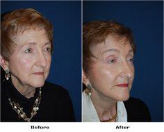 Procedures Performed: Endoscopic Brow Lift: Brow lift Eyelid: Lower Lid Blepharoplasty with SOOF Deep Plane Minituck Laser Resurfacing: Eyes Dr. Freeman's Makeovers Endoscopic Brow Lift, Co2 Laser Resurfacing, Eyelid Surgery, Beauty Skin, Brows, Eyes, Plane, Eyebrows, Eye Brows