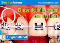 hilo-dental-brackets
