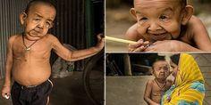 صور: الطفل العجوز.. عمره 4 سنوات ومصاب بالشيخوخة المبكرة