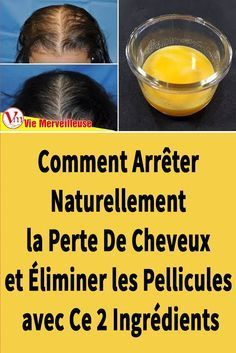 How to Stop Hair Loss Naturally and Eliminate Dandruff with This 2 Ingredients Best Natural Hair Products, Natural Hair Styles, Pink Hair Highlights, African Fashion Traditional, Light Pink Hair, Hair Dandruff, Hair Care Recipes, Hair Loss Women, Beauty