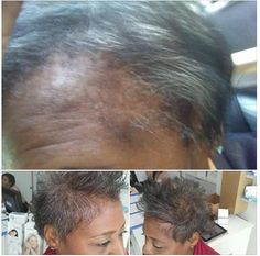 "she has been dealing with thinning hair due to alopecia. Plus she was in the military and from wearing those helmets, wow it left her hair dry, damaged and with no edges. She tried products after products to grow her hair back and nothing could give her a sign of new growth. She tried Monat for the very first time and her hair started responding immediately. She signed up as a MMP and using the products since March can actually say ""I have my edges back""!! She used ITR shampoo ITR spray…"