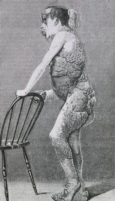 John Merrick: British medical journal, v. 2, London, 1886.