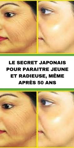 Anti Ride, Calories, Yoga, Couture, Sport, Honey, Facial Exercises, Face Wrinkles, Face Beauty