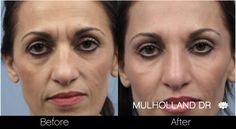 Before and After photo of Toronto Botox patient http://www.spamedica.com #botoxtoronto