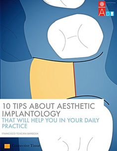 10 tips about aesthetic implant dentistry ebook