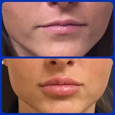 Nail - syringe of Juvederm ultra. Beautiful results even corrected a slight asymmetry in her top lip. - - 1 syringe of Juvederm ultra. Beautiful results, even corrected a slight asymmetry in her top lip. Call for an appointment today. Dermal Fillers Lips, Facial Fillers, Botox Fillers, Lip Fillers, Lip Injections Juvederm, Botox Lips, Juviderm Lips, Lip Augmentation, Lip Shapes