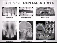 Are dental x-rays safe? Get the important facts about the radiation dose and safety of dental x-rays on simple charts. Routine dental x-rays are safe. Dental Assistant Study, Dental Hygiene Student, Dental Procedures, Dental Humor, Dental Hygienist, Dental Implants, Medical Students, Dentist Jokes, Nursing Students