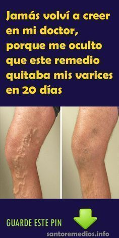 Jamás volví a creer en mi doctor, porque me oculto que este remedio quitaba mis varices en 20 días #Oculto#Remedio#Varices#Salud Health And Beauty, Health And Wellness, Health Fitness, Natural Medicine, Herbal Medicine, Home Remedies, Natural Remedies, Healthy Tips, Body Care