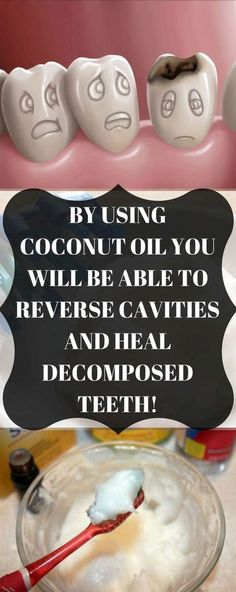 By Using Coconut Oil You Will Be Able To Reverse Cavities And Heal Decomposed Teeth Coconut oil is one of the most versatile and healthiest things we can use. It provides a myriad of medicinal uses, and apparently, it is excellent for our dental health. Reverse Cavities, Coconut Oil For Teeth, Coconut Oil Toothpaste, Uses For Coconut Oil, Coconut Oil Pulling Teeth, Coconut Oil Face, Eating Coconut Oil, Coconut Oil Beauty, Coconut Oil Hair Mask