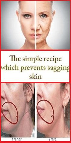Health Beauty Remedies The simple recipe which prevents sagging skin Beauty Care, Beauty Skin, Health And Beauty, Hair Beauty, Beauty Box, Beauty Makeup, Healthy Beauty, Makeup Eyes, Homemade Facial Mask