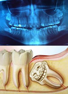 Funny wisdom teeth images and memes to share with a family member or friend who is recovering after their wisdom teeth surgery Teeth Surgery, Dental Surgery, Dental Implants, Tooth Extraction Care, Dental Bridge Cost, Wisdom Teeth Funny, Dental Humor, Dental Hygienist, Dental Assistant