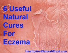 6 Useful Natural Cures for Eczema | #eczema #skin #remedy