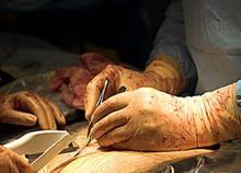 Πώς ακριβώς γίνεται η καισαρική: Ένα 4λεπτο βίντεο για γερό στομάχι!