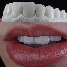 Knotty Dental Crowns Before And After Las Vegas Dental Logo, Dental Art, Dental Teeth, Veneers Teeth, Dental Veneers, Dental Photos, Cosmetic Dentistry Procedures, Dental Photography, Dental Anatomy