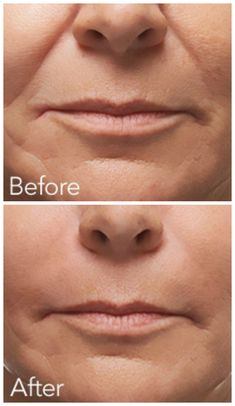 Radiesse is an injectable filler designed to help replace lost collagen and add volume to the skin. Collagen is what gives volume, flexibility and strength to healthy, young skin. As the body ages, collagen breaks down, diminishing facial volume and elasticity which results in wrinkles, facial lines and skin laxity.