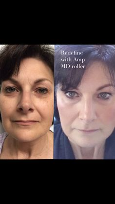 My momma with Rodan and Fields Redefine! Premium skincare.