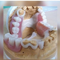 #teeth#dental#odontologia#dentistry#braces#dentalschool#dentalassistant#dentalhygienist#dentalhygieneschool#teethwhitening#cosmeticdentistry#cosmeticsurgery#toothfairy#implants#dentures#rootcanal#odonto#smile#whiteteeth#cavity#cloves#aboutdentistry#dentist#dentista#tooth#medical#dentalhygiene#doctor#dişhekimi #istanbul