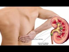 cálculos renales e hinchazón