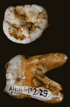 Researchers have analyzed DNA of 2 molars from Siberia's Denisova Caves. The molars belonged to 2 adult male Denisovans who lived some 60,000 years apart. The earlier individual lived up to 130,000yrs ago, while the later one lived between 50-70,000yrs ago. The unusual teeth were very large, unlike those of humans or Neanderthals. The results of the research stongly suggest that the Denisovans bred with other ancient hominins, relatives of modern humans whom science has yet to discover.