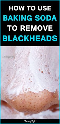 Blackheads Remedies How To Use Baking Soda To Remove Blackheads - Though blackheads are nothing to worry about but who doesn't want a clear and flawless skin? Try simple remedies with Baking Soda for Blackheads at home Baking Soda Face, Baking Soda Shampoo, Uses Of Baking Soda, Get Rid Of Blackheads, Pimples, Skin Tag, Natural Cures, Natural Health, Natural Skin