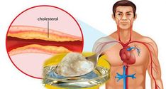 Marvelous Useful Tips: High Blood Pressure Control hypertension symptoms blood pressure.Hypertension Chart blood pressure medications home remedies.How To Take Blood Pressure Medicine. High Cholesterol Levels, Lower Your Cholesterol, Cholesterol Diet, Cholesterol Symptoms, Clogged Arteries, Medicine Book, Chinese Medicine, Blood Pressure Remedies, Natural Remedies