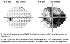 Results of normal and abnormal peripheral vision tested using the Humphrey Visual Field Analyser