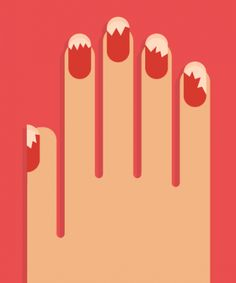 Warning: beware of this nail polish brand. What could happen to your hands is gross...