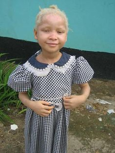 I searched pinterest tonight for images of people with albinism and didn't find any. I wanted to change that. Albinism is beautiful.