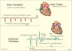 left atrial fibrillation