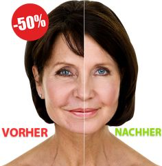 No botox - 15 years younger guaranteed Anti Aging Tips, Anti Aging Serum, Anti Aging Skin Care, Beauty Skin, Health And Beauty, Hair Beauty, Cosmetic Fillers, Goji, Skin Firming