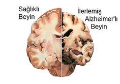alzheimers-   Alzheimer derece derece anlık bellek ve diğer zihinsel yetilerin kaybına yol açar. Şuanda Alzheimer hastalığı, en sık rastlanılan demans tipidir, tedavisi yoktur ve ölümcüldür. Hastalık belirtileri, başlangıcından yaklaşık 10 yıl sonra ortaya çıkmaktadır.  Gözler ve Alzheimer Teşhisi Arasındaki İlişki alzheimers-copy   Amerika'daki Georgetown Üniversitesi Medical Center'daki ve Çin'deki Hong Kong Üniversitesindeki araştırmacılar, fareler üzerinde yapılan bir laboratuvar deney