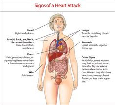 Heart Attack Signs - This is important!  Heart disease is still the #1 killer in women.