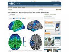 La gravedad de los síntomas del síndrome de espectro autista podría estar definida, según una investigación que se publica en The Procedings of the National Academy of Sciences (PNAS) en el cableado neuronal del córtex cerebral -una especie de hoja de materia gris que cubre el cerebro e influye en el pensamiento consciente, la memoria, el lenguaje y otras funciones-. De acuerdo con este trabajo,