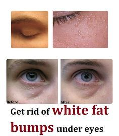 White fat bumps or white under eyes pimples also known as Milia, occurs usually under eyes but you can also get it on your nose, forehead and cheeks. There is no need to have any surgery if this treatment isregularly repeated.
