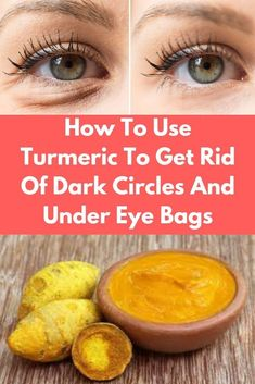 How To Use Turmeric To Get Rid Of Dark Circles And Under Eye Bags darkcircles eyebags turmeric beautydiy skincaretips Skincaretipsforacne Dry Eyes Causes, Droopy Eyelids, Dark Circles Under Eyes, Dark Around Eyes, Dark Under Eye, Les Rides, Puffy Eyes, Tips Belleza, Natural Treatments